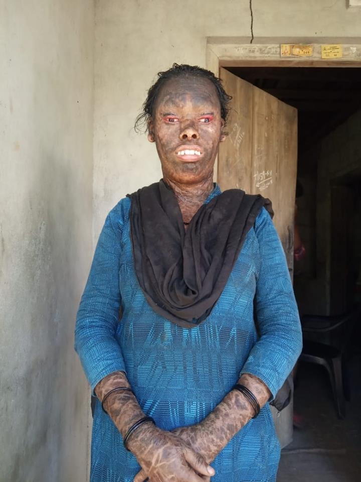 Ridiculed For Her Face, Kerala Woman Is Fighting Her Destiny  Needs Your Help -4102